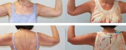 arm-lift-a