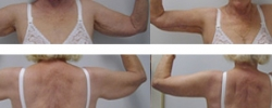 arm-lift-b