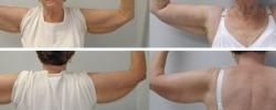 arm-lift-c