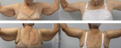 arm-lift-d
