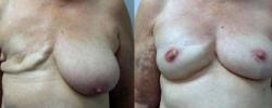 Breast Reconstruction 1
