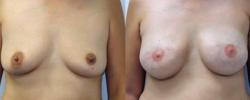 Breast Reconstruction 2