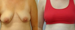 Breast Reconstruction 3