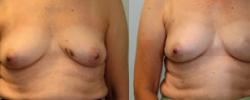 Breast Reconstruction 4