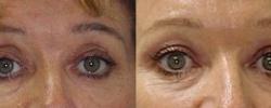 Eyelid Surgery Patient 5