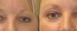 Eyelid Surgery Patient 6