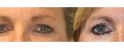 Eyelid Surgery Patient 1