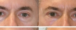 Eyelid Surgery Patient 3