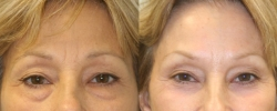 Eyelid Surgery Patient 7