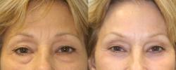 Eyelid Surgery Patient 7