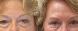 Eyelid Surgery Patient 4