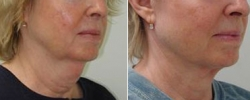 Facelift Patient 7