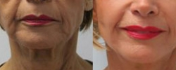 Facelift Patient 9