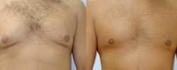 Male Breast Reduction Patient 1