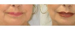 Lip Augmentation Patient 1