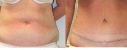 Liposuction Patient 15