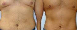 Liposuction Patient 3