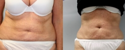 Liposuction Patient 8