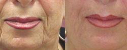Wrinkle Treatment Patient 1