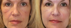 Wrinkle Treatment Patient 3
